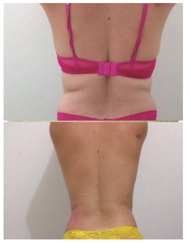 termo press fit antes e depois